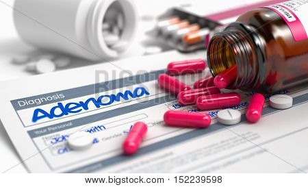 Handwritten Diagnosis Adenoma in the History of the Present Illness. Medicaments Composition of Red Pills, Blister of Pills and Bottle of Tablets. 3D Illustration.