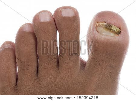 Ringworm of the Nail