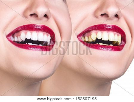 Beautiful young woman with white teeth. Before and after treatment difference.