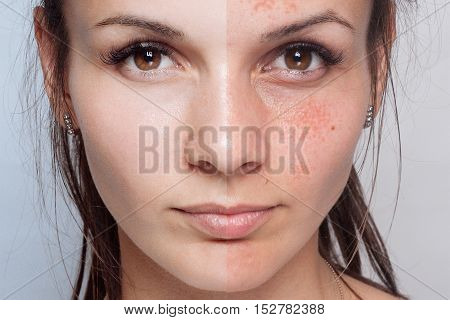 Before and after cosmetic operation. Young pretty woman portrait isolated on a white background. Before and after cosmetic or plastic procedure anti-age therapy
