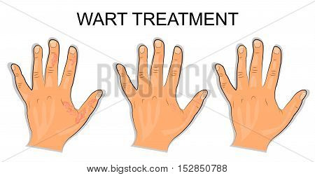 illustration of a hand affected by the wart