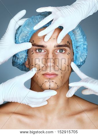 Young man with many surgical hands. Patient with pencil marks on skin for cosmetic medical procedures. Surgical mark lines on eyes nose cheek and jaw. Beauty face concept
