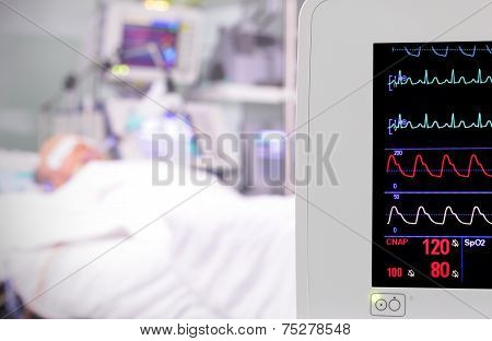 Monitor In The Room. Intensive Care Unit.