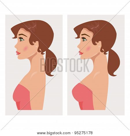 Chest Before And After Plastic. Vector Illustration