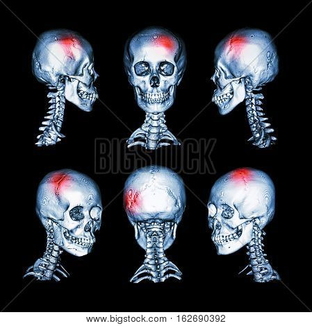 CT scan and 3D image of head and cervical spine . Use this image for stroke , skull fracture , neurological condition .