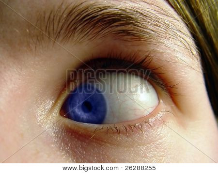 Woman acting silly with her eye turned in