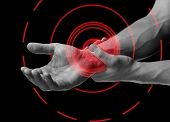 stock photo of joint inflammation  - Acute pain in a male wrist - JPG