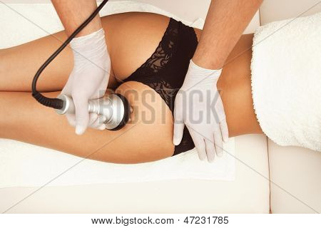 cellulite treatment buttocks area indoor shot