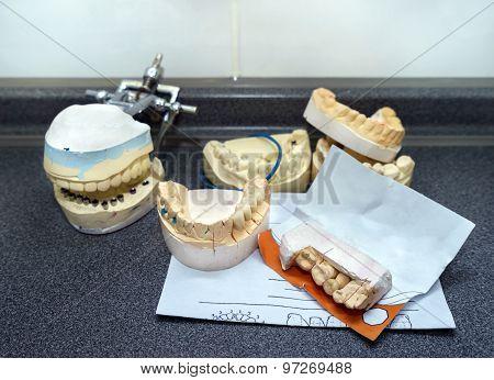 Dental Molds For Prosthetic Teeth