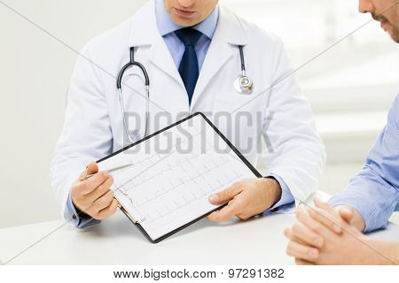 medicine, health care, people and cardiology concept - close up of f male doctor and patient hands with cardiogram on clipboard