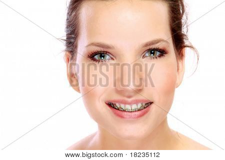 young womans smile with braces