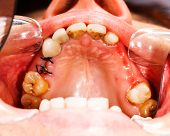 foto of denture  - Stitches after extraction  - JPG