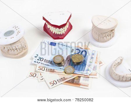 Expensive Dentures
