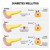 picture of diabetes mellitus  - Main types of diabetes mellitus - JPG