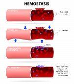 stock photo of blood vessels  - Basic steps in hemostasis - JPG