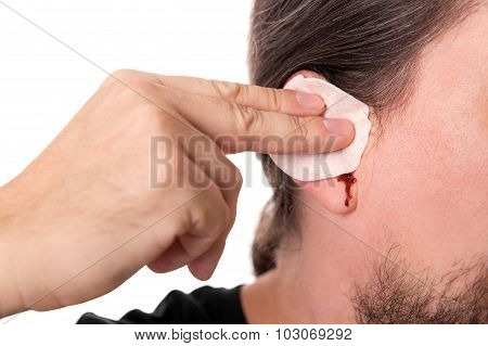 Man Having Ear Bleeding, Isolated On White, Concept Otitis Media Or Otitis Externe