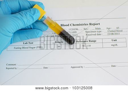 Blood sugar result