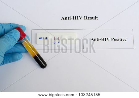 HIV testing positive