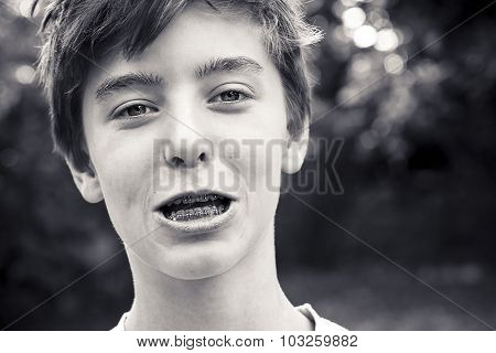 Portrait Of A Laughing Teenage Boy With A Brace