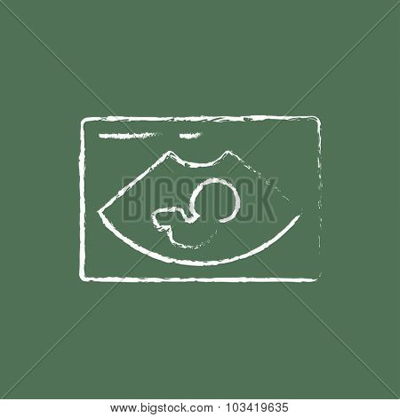 Fetal ultrasound hand drawn in chalk on a blackboard vector white icon isolated on a green background.