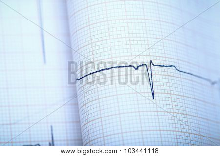 Close-up Of Heart Complex On Ecg Paper