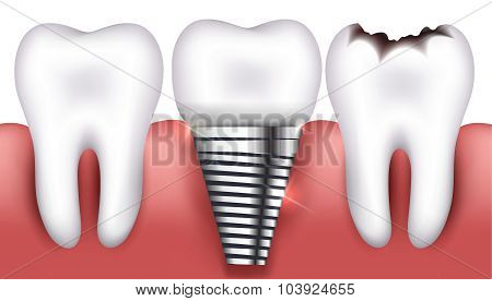 Healthy Tooth, Toorh With Caries And Dental Implant