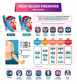 High Blood Pressure Vector Illustration. Labeled Systole Explanation Scheme. Medical Hypertension Hb poster