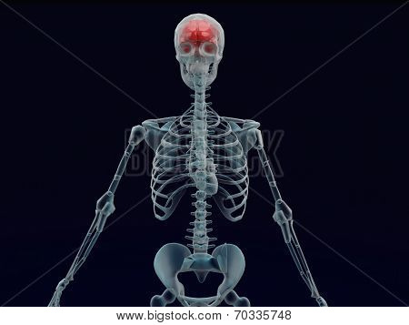 Human Red Brain X Ray In Black Background