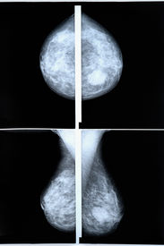 picture of mammography  - mammography breast scan X - JPG