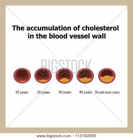 Deposition of cholesterol in function of age.