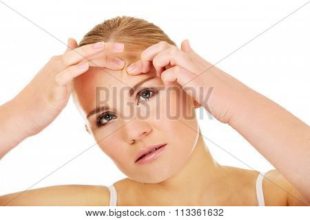 Unhappy young woman squeezing pimple on face.
