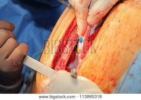Surgeons Working With Dissected Chest