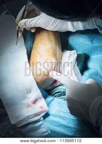 Hospital Elbow Orthopedics Surgery Operation