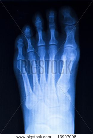 Foot And Toes Injury X-ray Scan