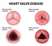 Постер, плакат: Heart Valve Disease