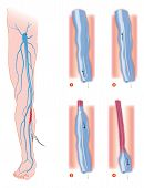 picture of scalpels  - endovenous laser treatment varicose vein ablation instrument - JPG