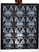 Mri Scan Image Of Brain. Holds A Picture In His Hand poster