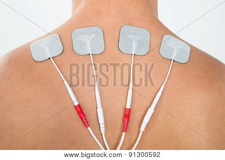 Man With Electrodes On His Back