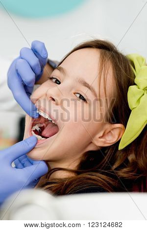 Cute little girl with braces at orthodontist