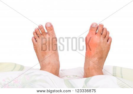 Man with right foot swollen and painful gout inflammation resting on bed