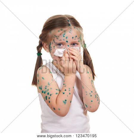 sick child has the virus on skin