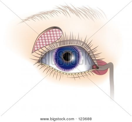 Eye Mechanicisms