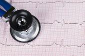 electrocardiogram poster