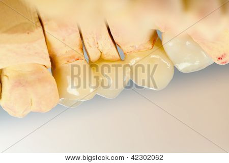 Pressed Ceramic Teeth
