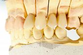 pic of emax  - Lateral view of a highly aesthetic dental bridge and crown on gypsum model - JPG