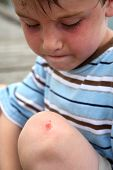 picture of scrape  - Young boy looking at a scrape on his knee - JPG