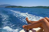 picture of sunburn  - ride on a boat on the sea stay at the resort - JPG