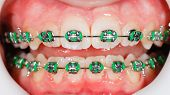 picture of overbite  - Closeup photo of orthodontic braces on teeth - JPG