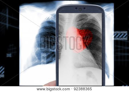 Smartphone and male chest x-ray with heart shape on black background