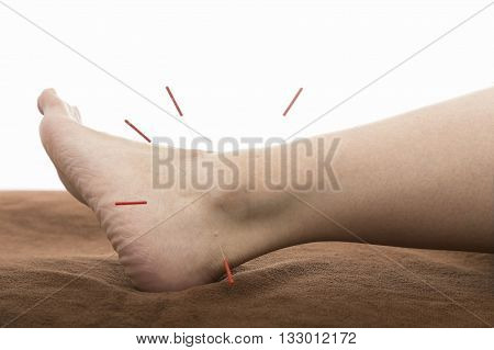Acupuncture on the leg - the direction in traditional Chinese medicine